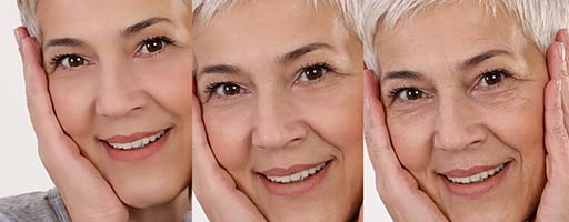 Aging-Dull-Skin-bottom-picture