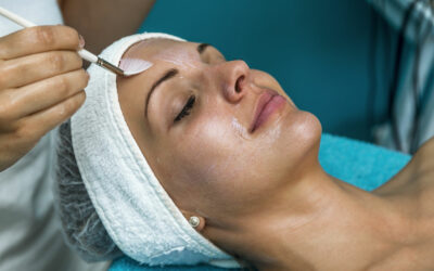 Considering a Chemical Peel?